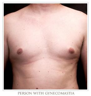 St. Louis Gynecomastia Surgery